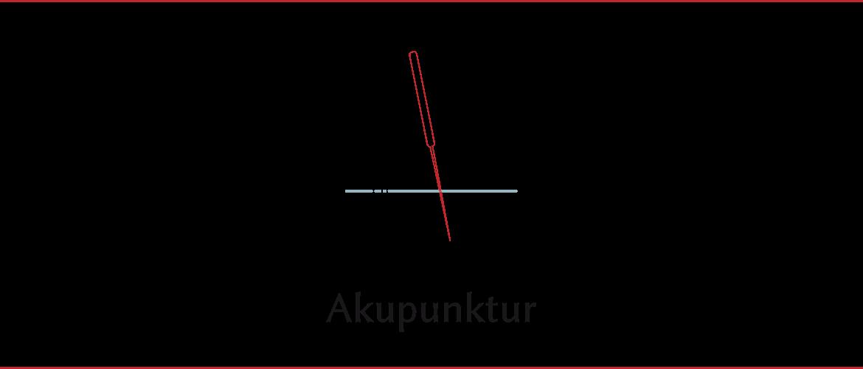 Akupunktur bei neurologischen Erkrankungen